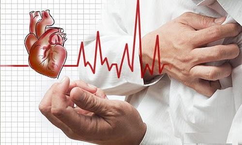 Nhồi máu cơ tim là gì? Những triệu chứng cảnh báo bệnh bạn cần biết